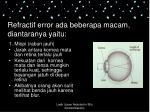 refractif error ada beberapa macam diantaranya yaitu