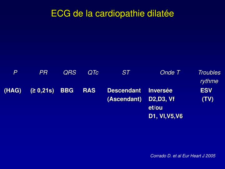 ECG de la cardiopathie dilatée