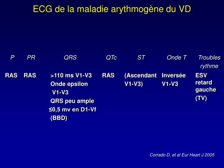 ECG de la maladie arythmogène du VD