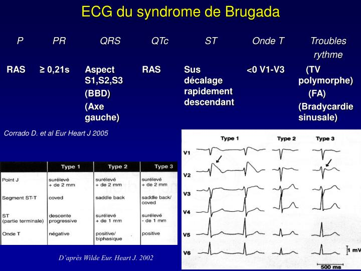 ECG du syndrome de Brugada