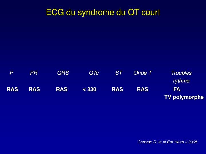 ECG du syndrome du QT court