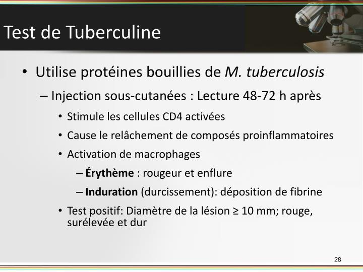 Test de Tuberculine