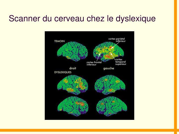 Scanner du cerveau chez le dyslexique