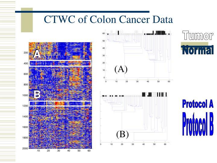 CTWC of Colon Cancer Data