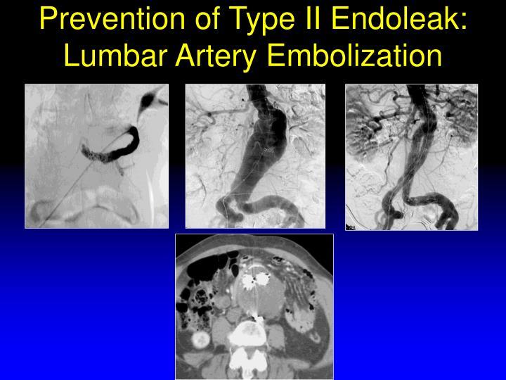 Prevention of Type II Endoleak: Lumbar Artery Embolization