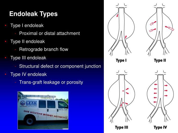 Endoleak Types