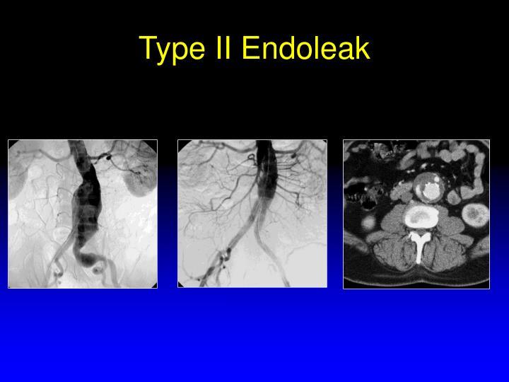 Type II Endoleak