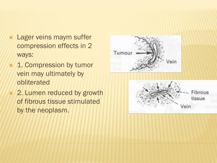 Lager veins maym suffer compression effects in 2 ways: