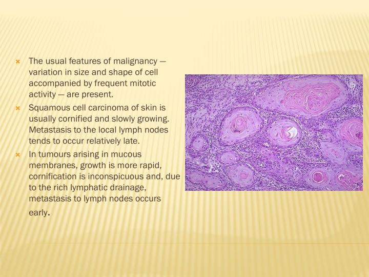 The usual features of malignancy — variation in size and shape of cell accompanied by frequent mitotic activity — are present.