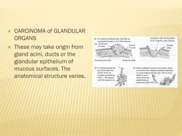 CARCINOMA of GLANDULAR ORGANS
