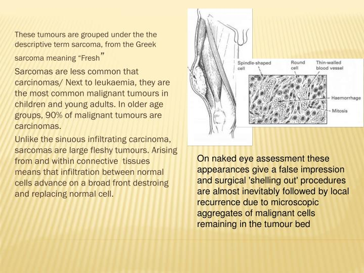 """These tumours are grouped under the the descriptive term sarcoma, from the Greek sarcoma meaning """"Fresh"""