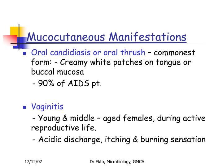 Mucocutaneous Manifestations
