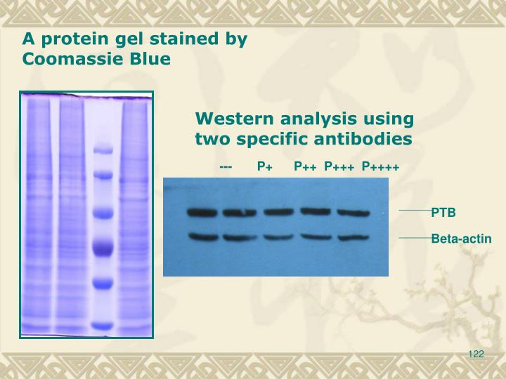 A protein gel stained by Coomassie Blue