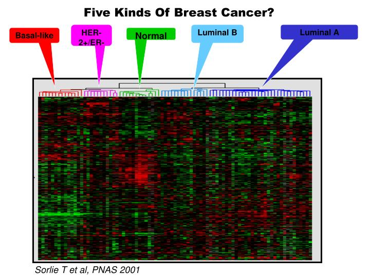 Five Kinds Of Breast Cancer?