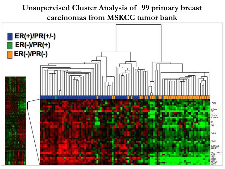 Unsupervised Cluster Analysis of  99 primary breast carcinomas from MSKCC tumor bank