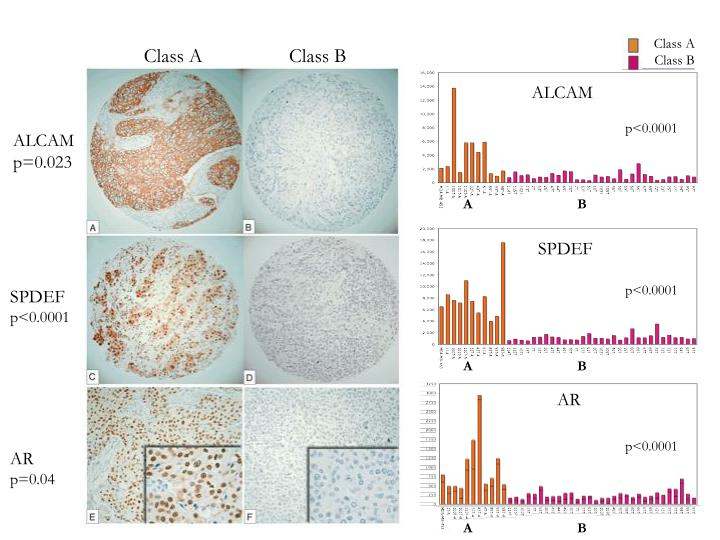 IHC for differentially expressed genes in ER(-) Class A