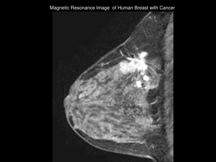 Magnetic Resonance Image  of Human Breast with Cancer