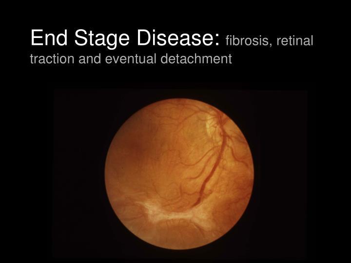 End Stage Disease:
