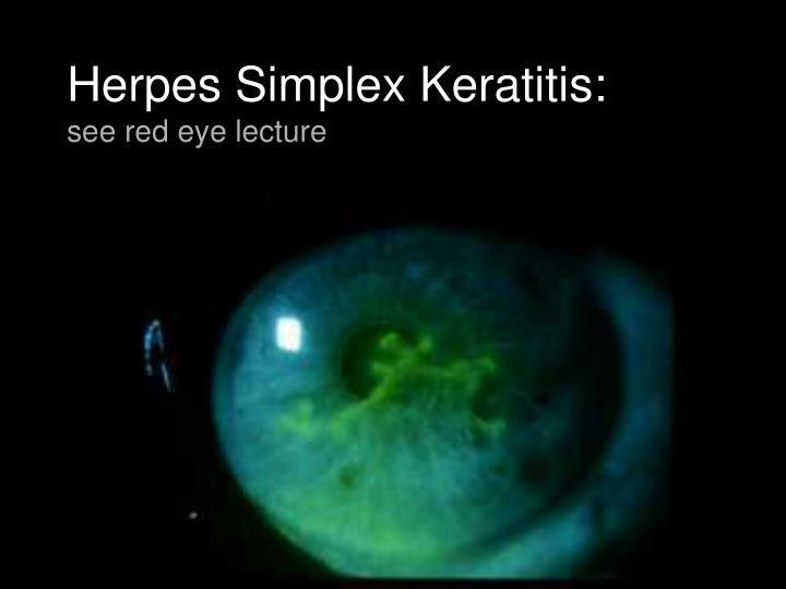 Herpes Simplex Keratitis: