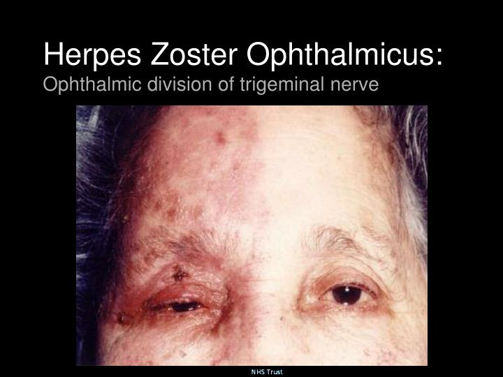 Herpes Zoster Ophthalmicus: