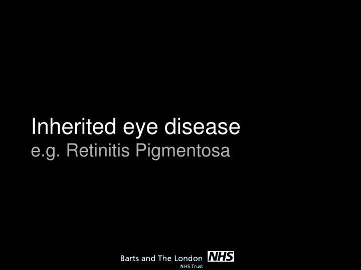 Inherited eye disease
