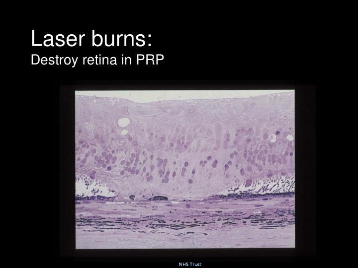 Laser burns: