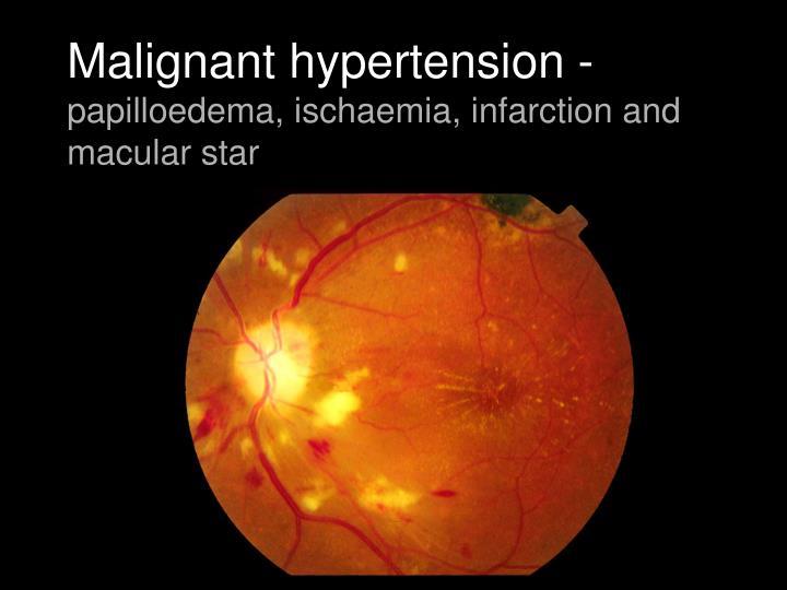 Malignant hypertension -