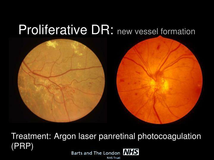 Proliferative DR: