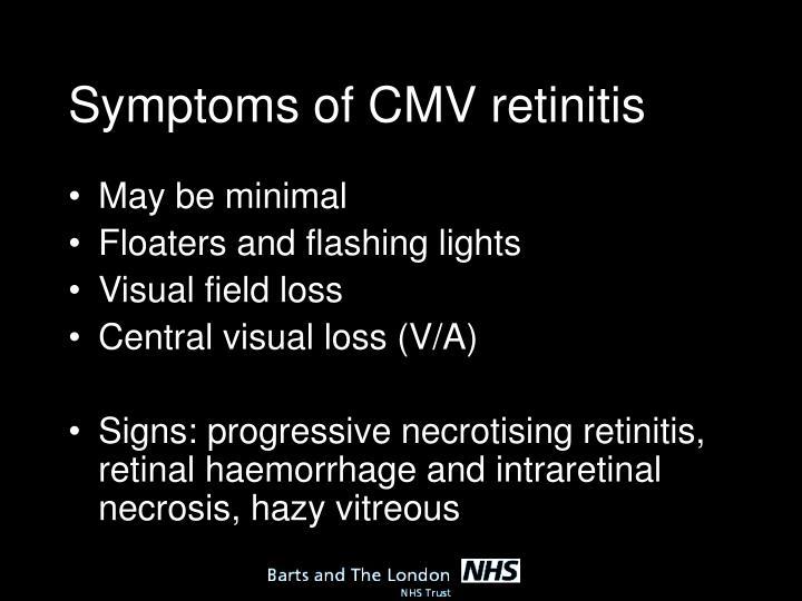 Symptoms of CMV retinitis