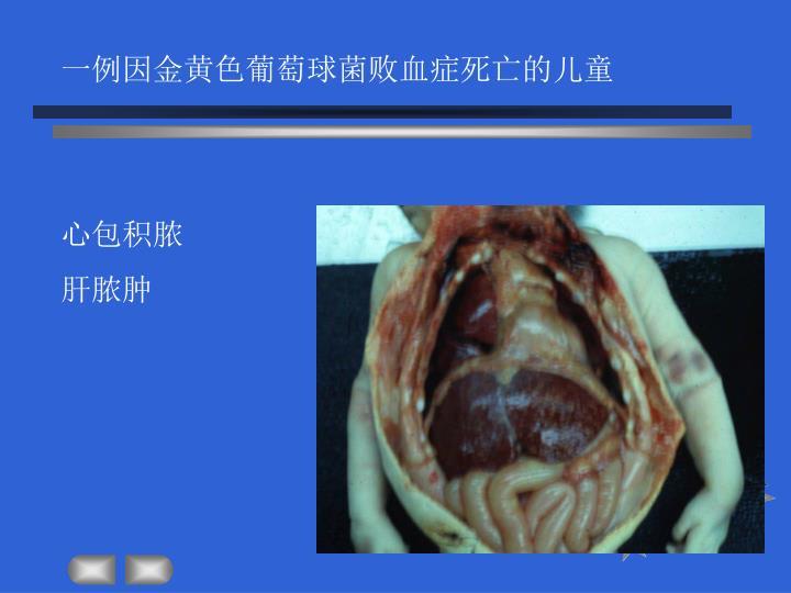 一例因金黄色葡萄球菌败血症死亡的儿童