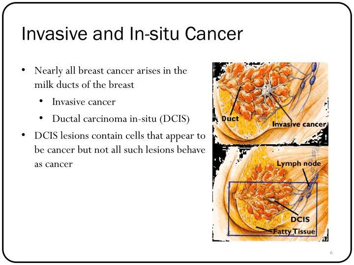 Invasive and In-situ Cancer