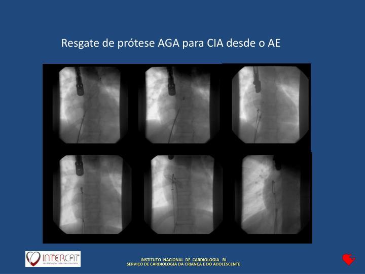 Resgate de prótese AGA para CIA desde o AE