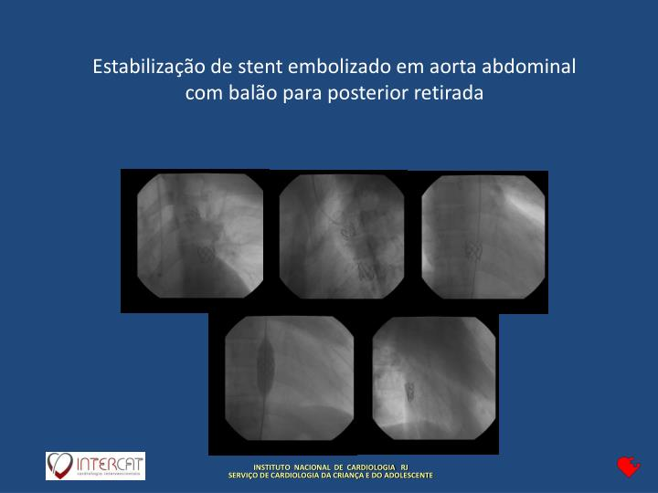 Estabilização de stent embolizado em aorta abdominal com balão para posterior retirada