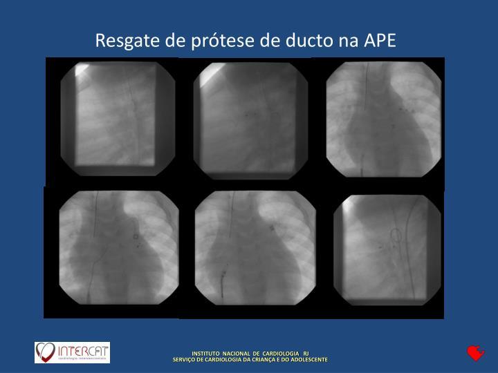 Resgate de prótese de ducto na APE