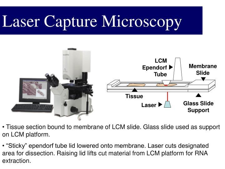 Laser Capture Microscopy
