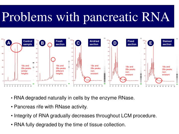 Problems with pancreatic RNA