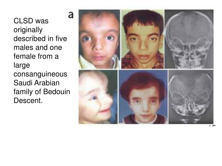 CLSD was originally described in five males and one female from a large consanguineous Saudi Arabian family of Bedouin