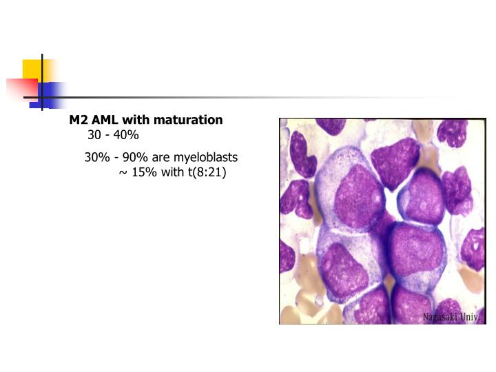 M2 AML with maturation