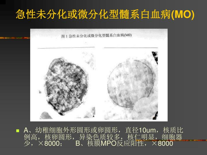 急性未分化或微分化型髓系白血病