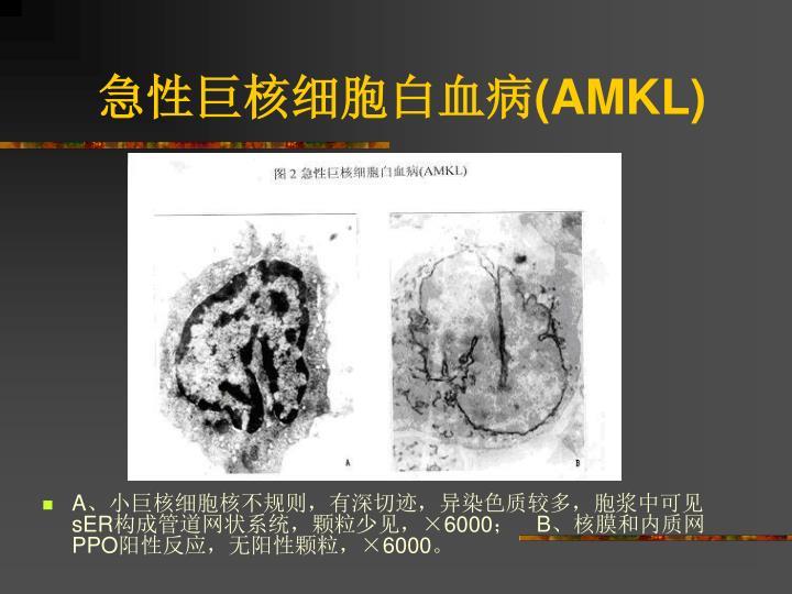 急性巨核细胞白血病