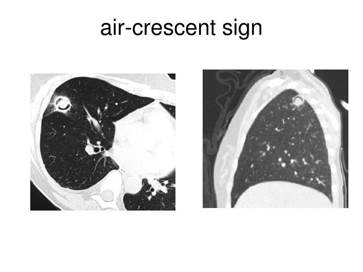 air-crescent sign