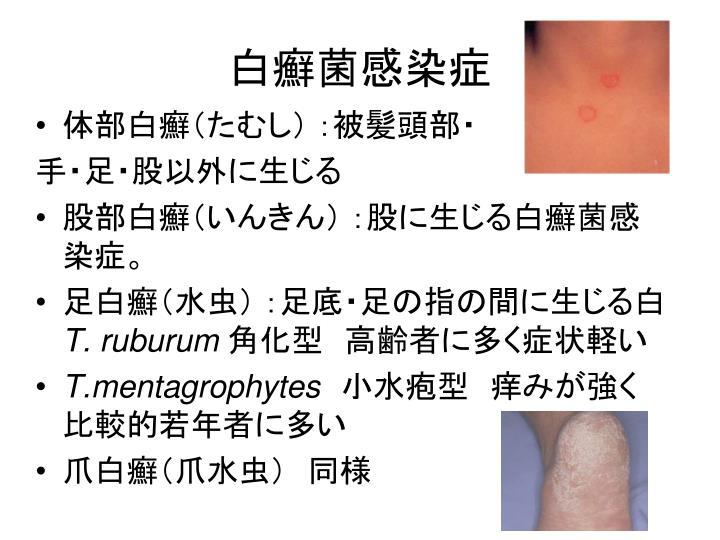 白癬菌感染症