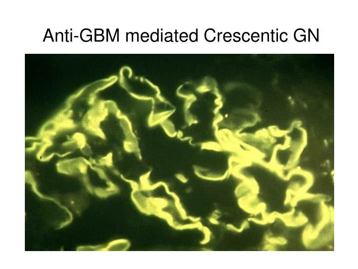 Anti-GBM mediated Crescentic GN