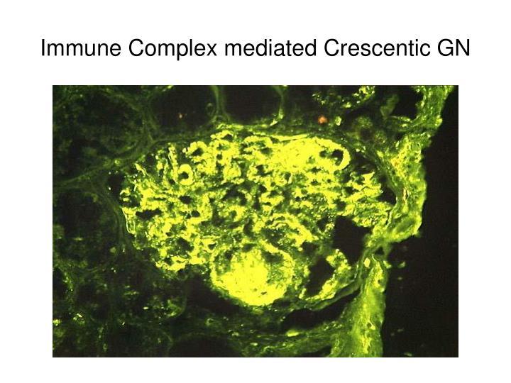 Immune Complex mediated Crescentic GN