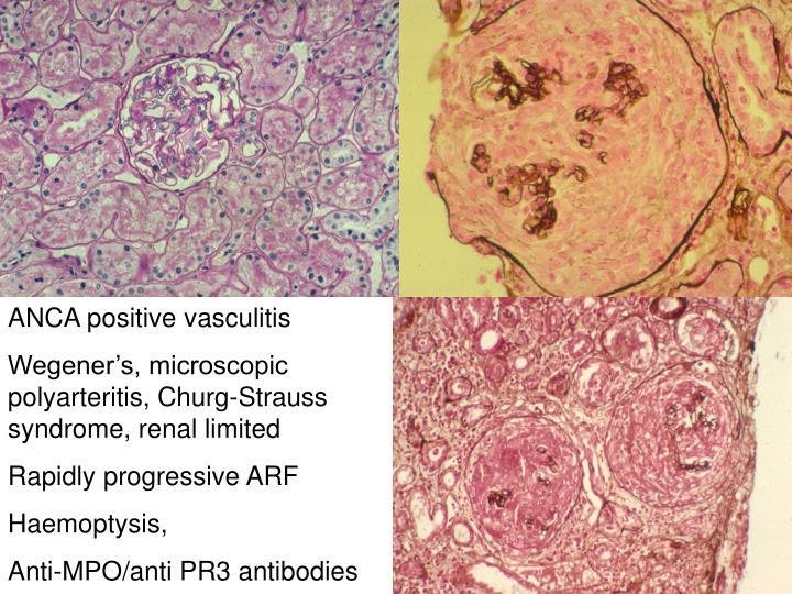 ANCA positive vasculitis