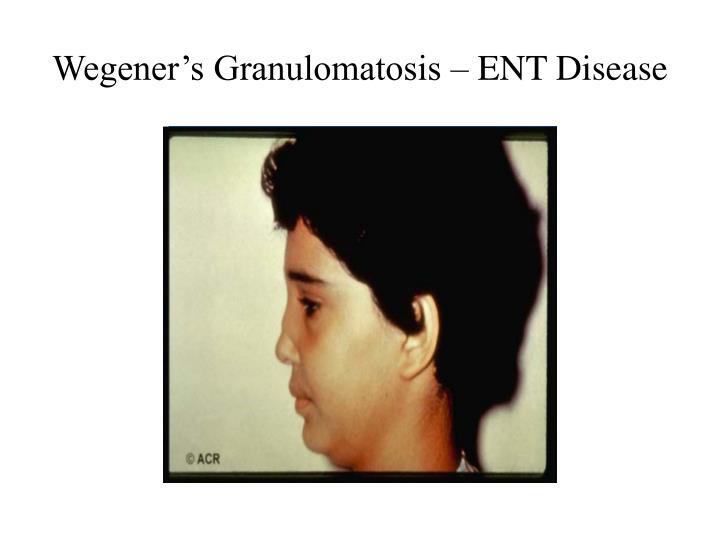 Wegener's Granulomatosis – ENT Disease