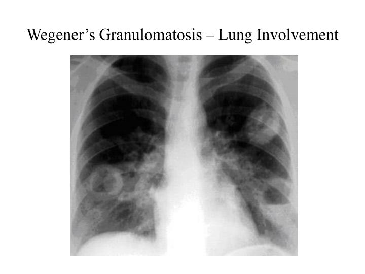 Wegener's Granulomatosis – Lung Involvement
