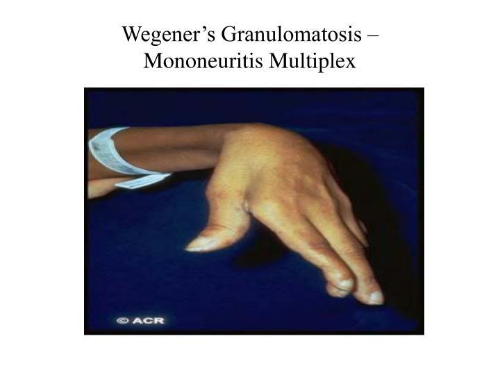 Wegener's Granulomatosis –
