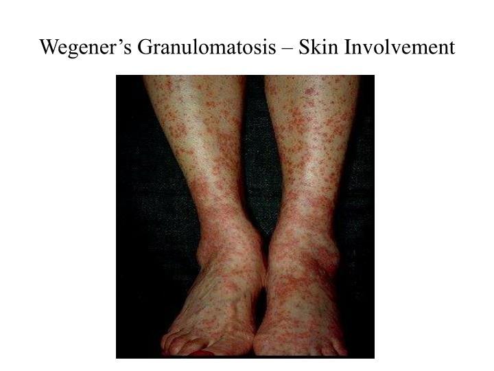 Wegener's Granulomatosis – Skin Involvement