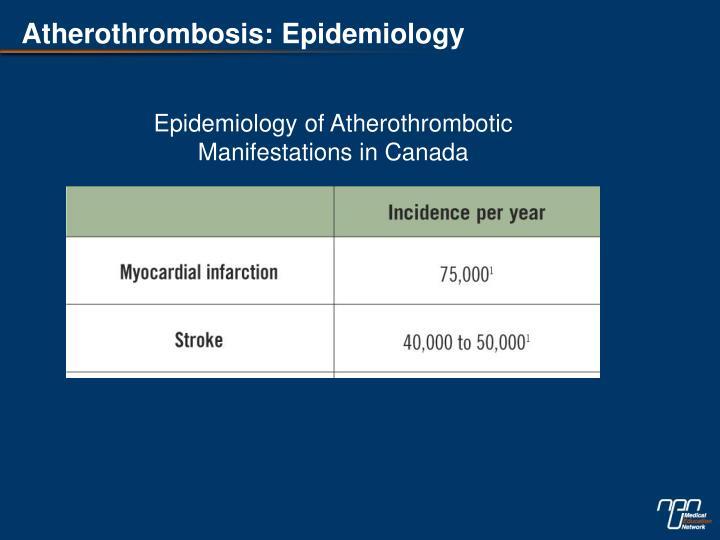 Atherothrombosis: Epidemiology